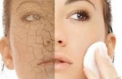 Dealing with Dry Skin the Natural Way