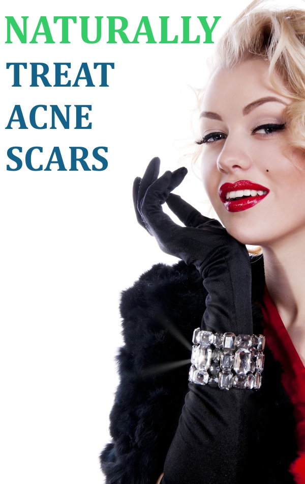 Top 5 Home Remedies for Acne Scars