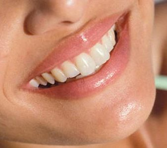Top 5 Natural/Organic Remedies for Teeth Whitening